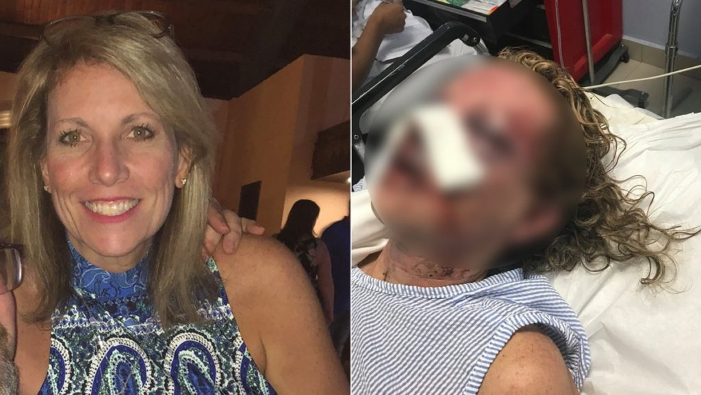 Tammy Lawrence-Daley before and after the attack in the Dominican Republic